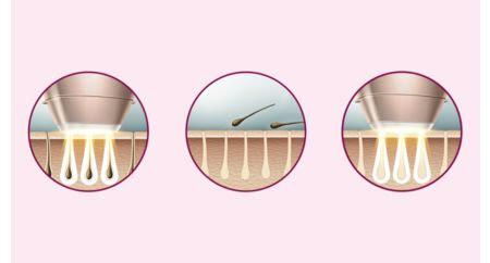 تقنية IPL المتطورة للاستخدام في المنزل، تم تطويرها بالتعاون مع أطباء الأمراض الجلدية